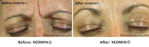 xeomin-before-and-after