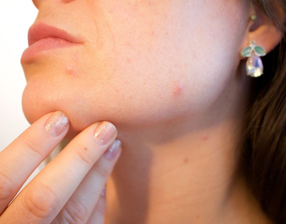 Acne Treatments in Clifton Park, NY