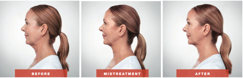 KYBELLA®before and after