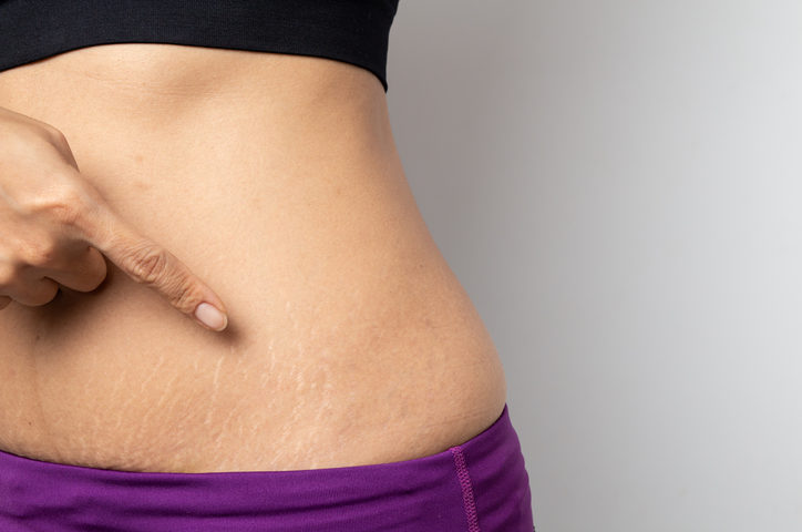 Stretch Mark Treatment for Clifton Park, NY